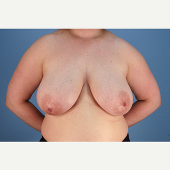 25-34 year old woman treated with Breast Reduction before 3837778