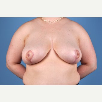 25-34 year old woman treated with Breast Reduction after 3837778
