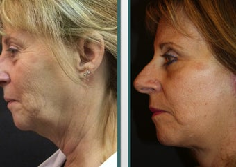 Facelift and eyelid surgery before 1065258