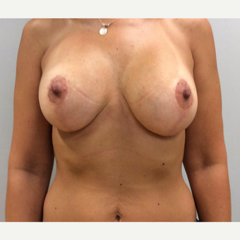 Breast Augmentation with Lift after 2995452