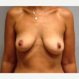 Breast Augmentation with Lift before 2995452