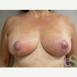 Breast Reduction after 3373566