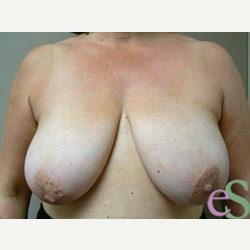 Breast Reduction before 3373566