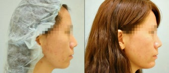 Chin Augmentation (Chin Implant) before 921732