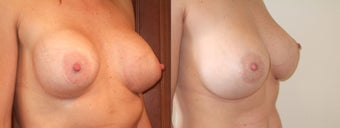 Breast Augmentation Revision with Capsulectomy