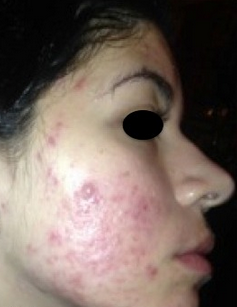 17 or under year old woman treated with Accutane before 2142774