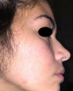 17 or under year old woman treated with Accutane after 2142774