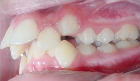 Severe Crowding and Overjet with Narrow Smile Treated Non-extraction with Braces before 1932403