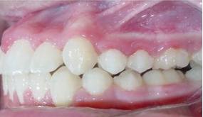 Severe Crowding and Overjet with Narrow Smile Treated Non-extraction with Braces after 1932403
