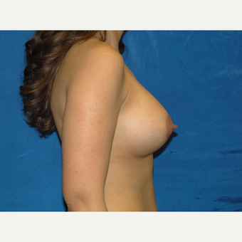 450 cc Breast Implants after 3447831