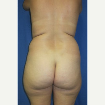 25-34 year old woman treated with Liposculpture