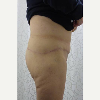 45-54 year old woman treated with Body Lift after 3419920