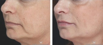 Voluma Filler to Lift and Rejuvenate the Face.  1482550