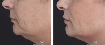 Voluma Filler to Lift and Rejuvenate the Face.  after 1482550
