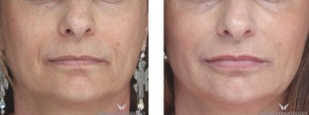 Voluma Filler to Lift and Rejuvenate the Face.  before 1482550