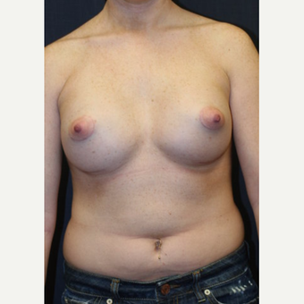 21 year old woman treated with Mentor Breast Implants after 3695675