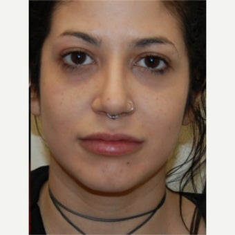 25-34 year old woman treated with Silikon 1000 for permanent lip augmentation. Single treatment.