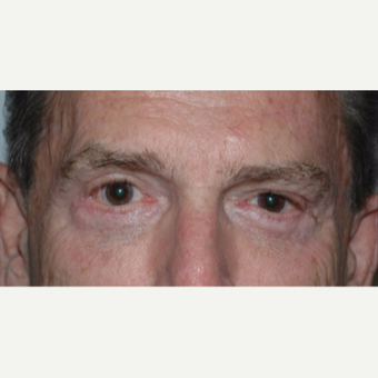 Eyelid Surgery after 3346401