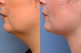 Chin liposuction before 635987