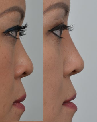 25-34 year old woman treated with Non Surgical Nose Job before 3666975
