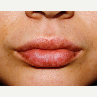25-34 year old woman treated with Juvederm after 3151810