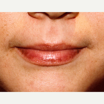 25-34 year old woman treated with Juvederm before 3151810