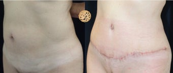 55-64 year old woman treated with Tummy Tuck before 3099665