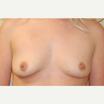25-34 year old woman treated with Breast Augmentation before 3183303