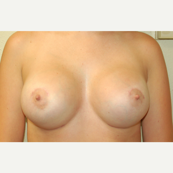 25-34 year old woman treated with Breast Augmentation after 3183303
