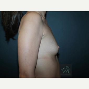 25-34 year old woman treated with Mentor Breast Implants before 3726031