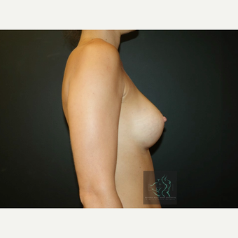 25-34 year old woman treated with Mentor Breast Implants after 3726031