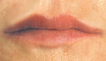 Lip enhancement after 374294