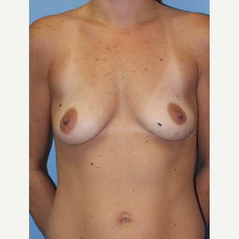 25-34 year old woman treated with Breast Implants before 1755791