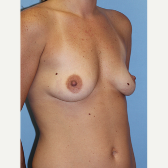 25-34 year old woman treated with Breast Implants 1755791
