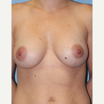 25-34 year old woman treated with Breast Implants after 1755791
