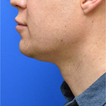 43 year old man treated with submental (chin) liposuction