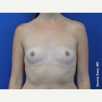 25-34 year old woman treated with Sientra Breast Implants before 3353080