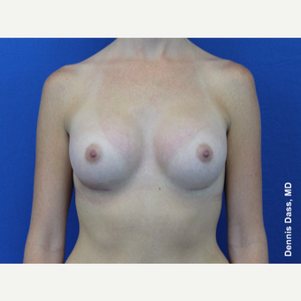 25-34 year old woman treated with Sientra Breast Implants after 3353080