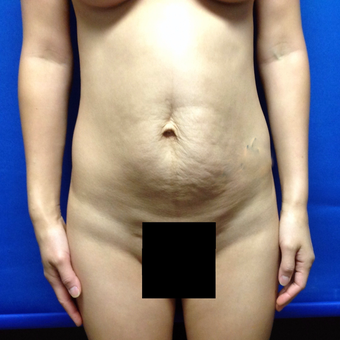 35-44 year old woman treated with Tummy Tuck before 3175334
