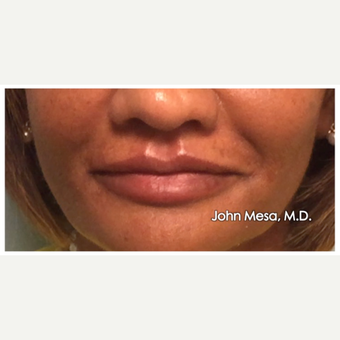 55-64 year old woman treated with Lip Augmentation after 3058431