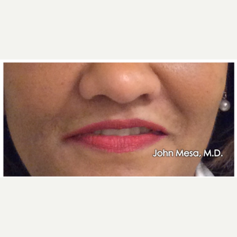 55-64 year old woman treated with Lip Augmentation before 3058431