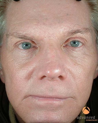 Male Patient Treated with BOTOX Cosmetic, Perlane & Sculptra