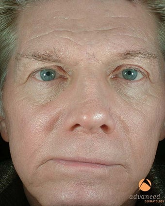 Male Patient Treated with BOTOX® Cosmetic, Perlane® & Sculptra® before 1047014