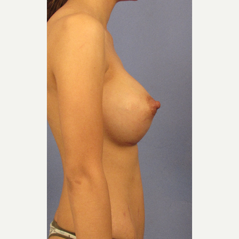 25-34 year old woman treated with Breast Augmentation after 3106222