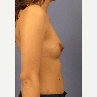 25-34 year old woman treated with Breast Augmentation before 3106222