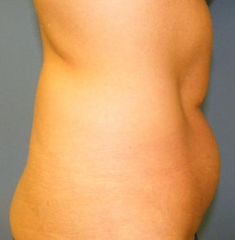 CoolSculpting before 879124
