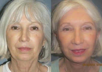 Facelift before 1283362