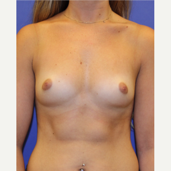 25-34 year old woman treated with Breast Augmentation before 3333350