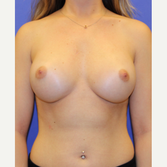 25-34 year old woman treated with Breast Augmentation after 3333350