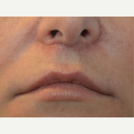 35-44 year old woman treated with Lip Lift, Dimpleplasty after 3065709